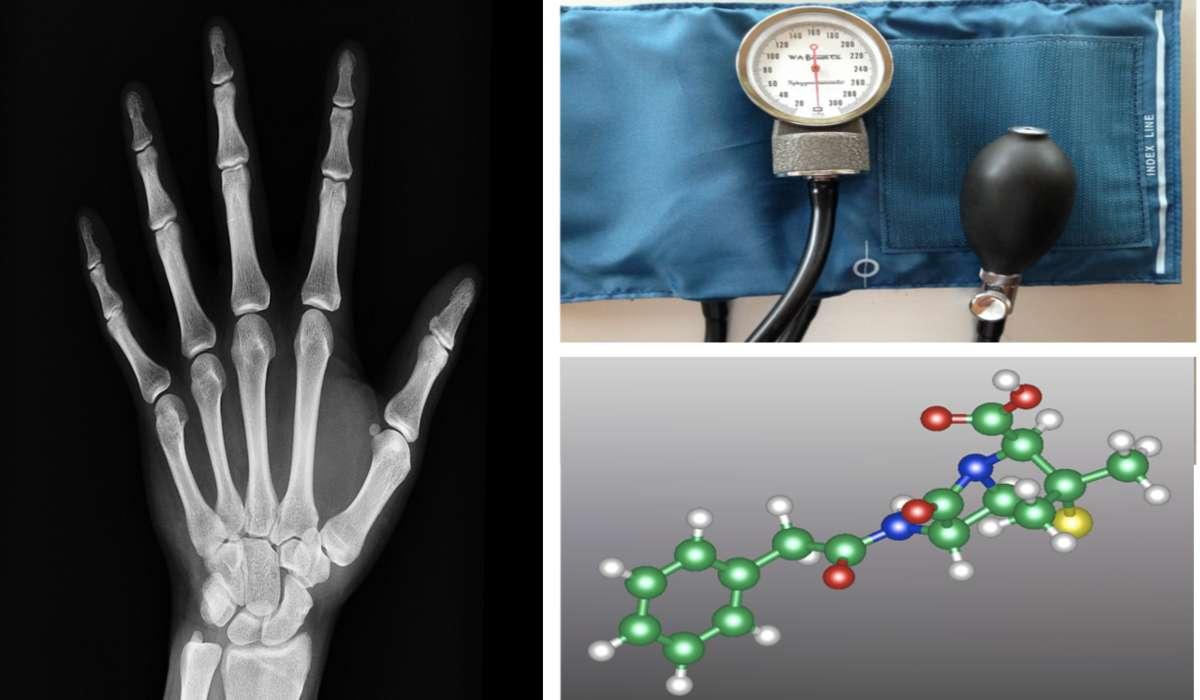 Raggi X, sfigmomanometro, penicillina