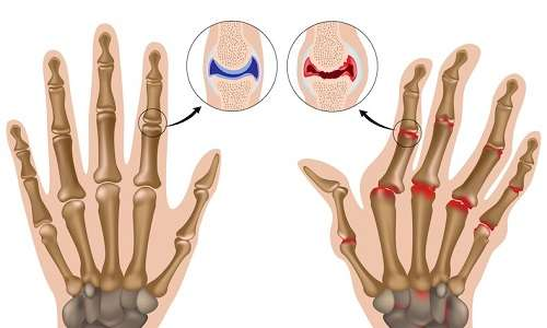 scrocchiare-dita-artrite-medicina