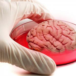 mini-cervello-medicina