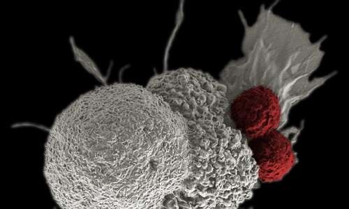 cellule-cancerose-cancro-tumore-medicina