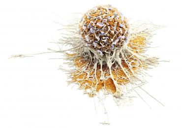 proteina il-33 tumore