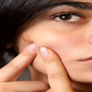 acne adolescenziale