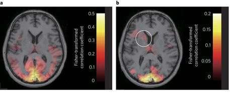 Aree del cervello mostrate grazie al fMRI. Successivamente vengono utilizzate immagini che raffigurano la fobia.