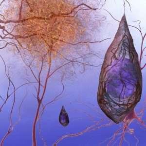 Le placche senile comportano la morte di neuroni coinvolti nel controllo della memoria, compromessa nella malattia di Alzheimer.