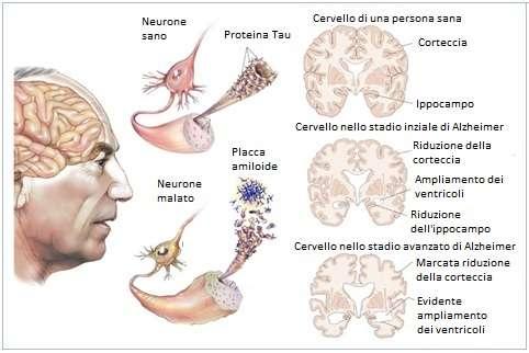 Riduzione del volume cerebrale associato alla perdita di memoria durante lo sviluppo della malattia di Alzheimer