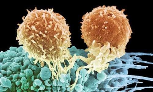 leucemia-cura-ingegneria-genetica