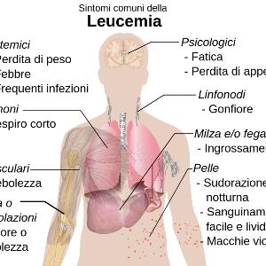 Curare la leucemia con l'editing genetico: ecco quali sono i sintomi della malattia