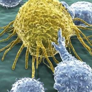 Leucemia: si trova una cura tramite l'editing genetico