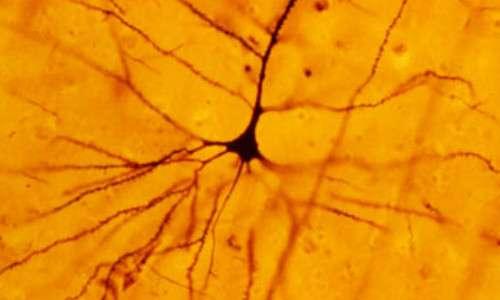 Un neurone può essere reso visibile all'interno di un cervello mediante la colarazione di Golgi