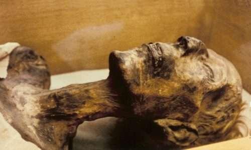 Il vaccino ha permesso di debellare il vaiolo, considerato causa della morte di Ramses IV la cui mummia porta i segni di un'infezione.
