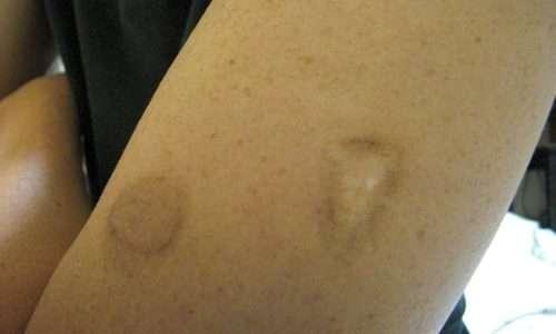 Il vaccino sviluppato per prevenire il vaiolo ha lascaito una cicatrice caratteristica sul braccio delle persone a cui veniva sottoposto, come quella mostrata nell'immagine.