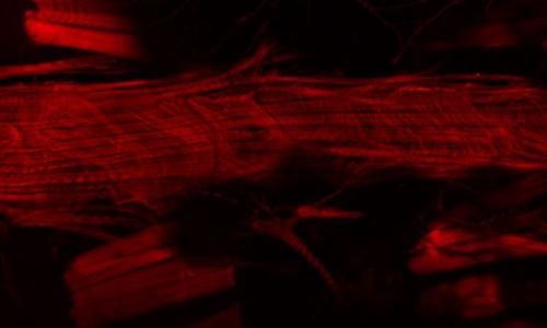Immagine del cuore del moscerino della frutta al microscopio