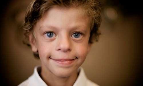La sindrome di Wilson è spesso associata ad orecchio assoluto.
