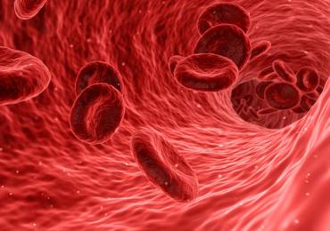 Alti livelli di bilirubina nel sangue possono essere dovuti alla sindrome di Gilbert.