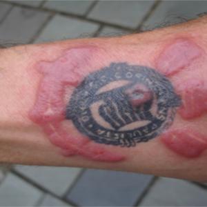 L'allergia all'inchiostro dei tatuaggi sta diventando una reazione avversa sempre più diffusa