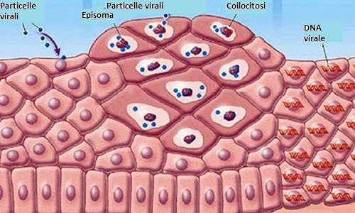 Il papillomavirus, infettando le cellule epiteliali può causare una crescita anomale di cellule che con il tempo può dar luogo a diversi tipi di cancro, come quello al pene nell'uomo dopo infezione da HPV.
