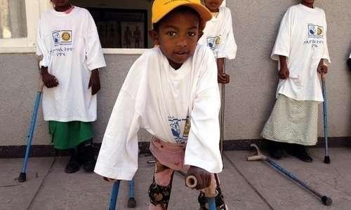La poliomielite oltre ai classici sintomi intestinali può causare una riduzione del tono e del trofismo muscolare impedendo al deambulazione.