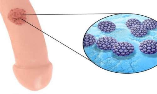 In seguito ad infezione da papillomavirus, le neoplasie del pene sono le più comuni conseguenze da HPV nell'uomo.