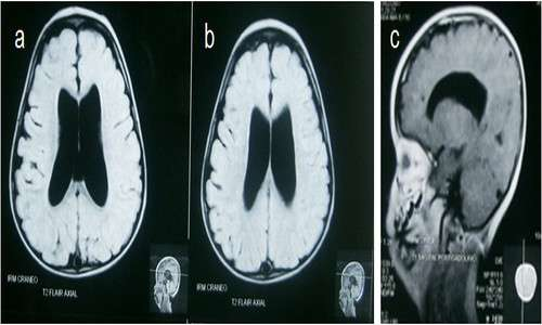 La sindrome di Klinefelter può manifestarsi con alterazioni neurologiche.