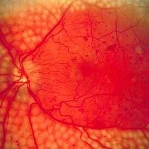 La neuropatia diabetica si manifesta con nevrite.