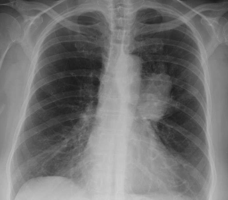 Nuove ricerche sui tumori polmonari, hanno permesso di scoprire che questi si nutrono principalmente di acido lattico, preferendolo al comune glucosio.