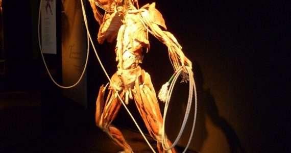 Con la plastinazione si possono creare vere e proprie statue a partire da corpi umani, sostituendone i liquidi con plastiche