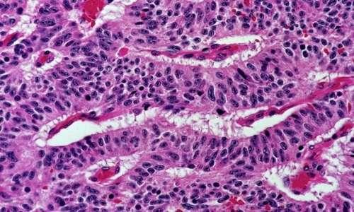 I carcinomi causati da cellule non piccole (NSCLC) colpiscono in maniera maggiore la popolazione maschile e rappresentano la quota maggiore dei tumori polmonari. Recenti studi hanno evidenziato che per svilupparsi i tumori polmonari preferiscono l'acido lattico al glucosio.