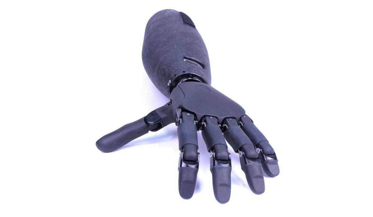 Come chiameresti un dispositivo artificiale creato per sostituire una parte del corpo mancante?