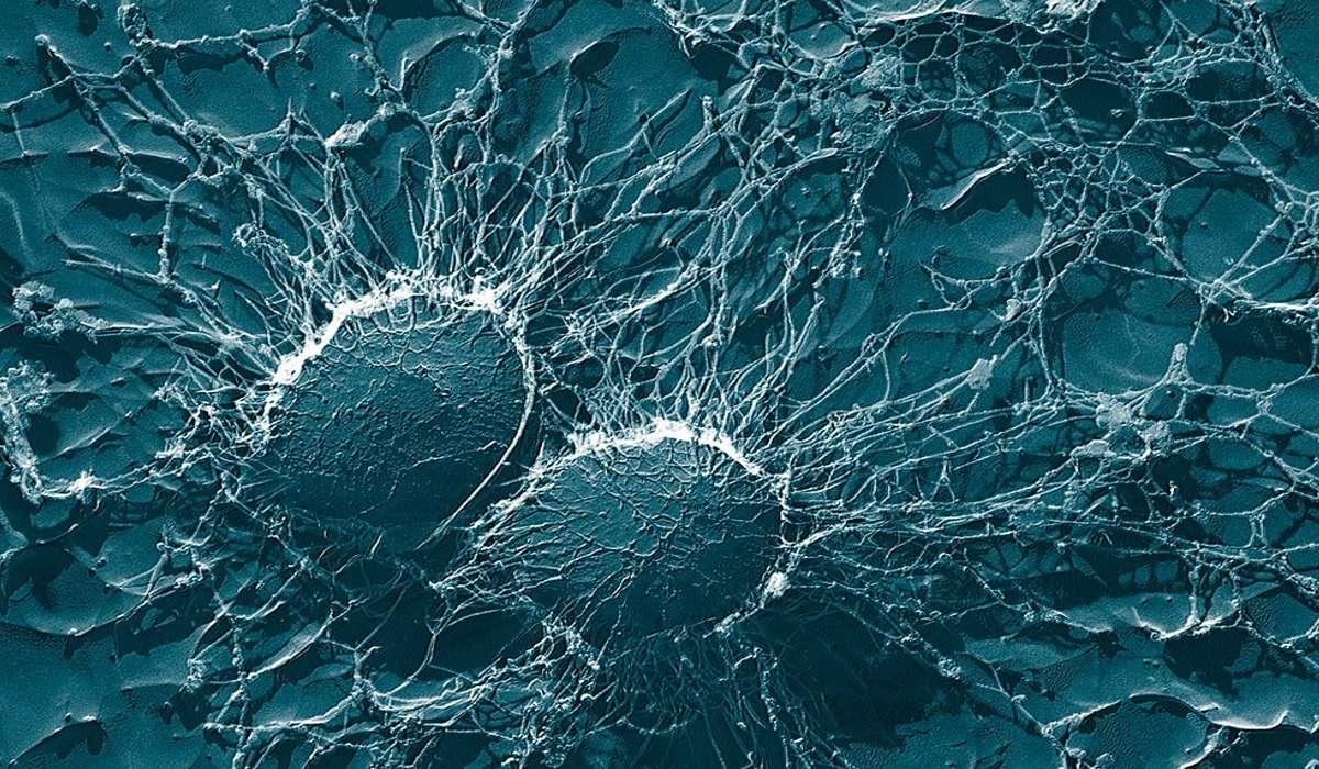 Se i batteri hanno una forma sferica si dice che sono?