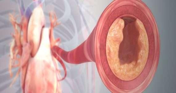 Le malattie cardiovascolari sono spesso causate dalla formazione di placche aterosclerotiche