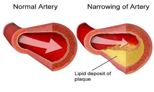 La formazione dell'ateroma o placca aterosclerotica porta all'aterosclerosi, alla base delle malattie cardiovascolari