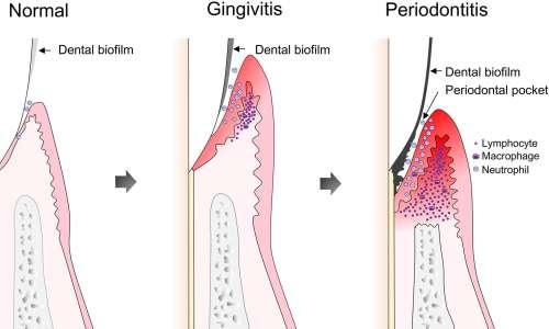 I danni progressivi causati da un biofilm orale.