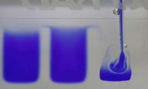 elettroforesi proteica