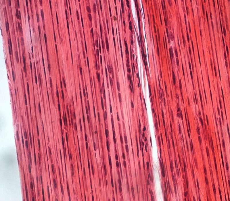 Collagene del connettivo