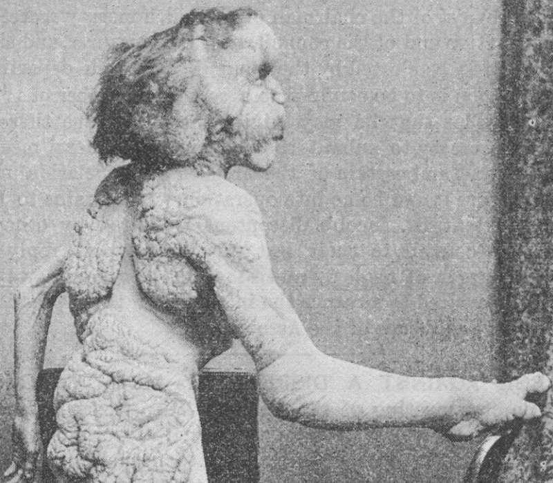 Foto di Joseph Merrick, il più famoso paziente con sindrome di Proteo