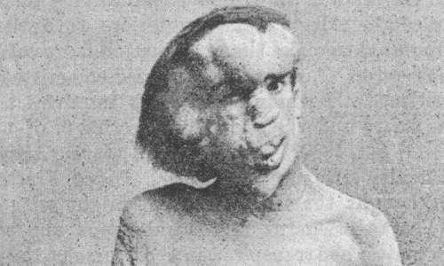 Joseph Merrick,