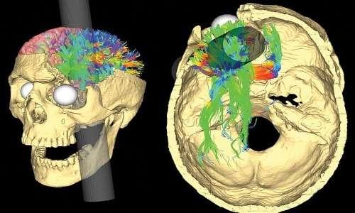 Il grave incidente che Phineas Gage subì causò danni a varie zone del cervello