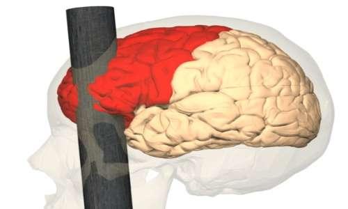 Il cervello di Phineas Gage fu colpito dall'asta di ferro che gli trapassò il cranio, causando la perdita di parte del lobo frontale sinistro