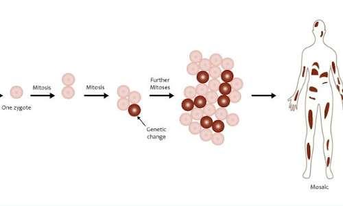 Il mosaicismo genetico è alla base della sindrome di Proteo