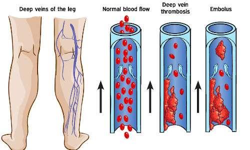 Schema della trombosi venosa profonda, la prima causa di morte prematura nella sindrome di Proteo