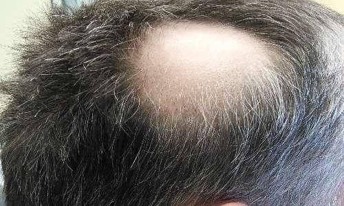 L'alopecia è un carattere principalmente maschile. Il cromosoma x insieme all'y è un cromosoma sessuale.