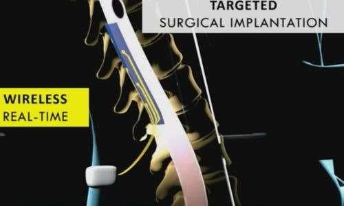 L'elettrodo della stimolazione epidurale viene inserito nello spazio epidurale, ha funzione wireless e può far iniziare la camminata.