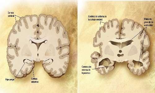 A sinistra, l'immagine di un cervello sano; a destra, l'immagine di un cervello in fase di degenerazione neuronale causata dal Morbo di Alzheimer, il disturbo mentale più frequenti negli anziani.