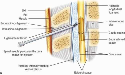 la stimolazione epidurale consiste nell'inserimento dell'elettro nello spazio epidurale