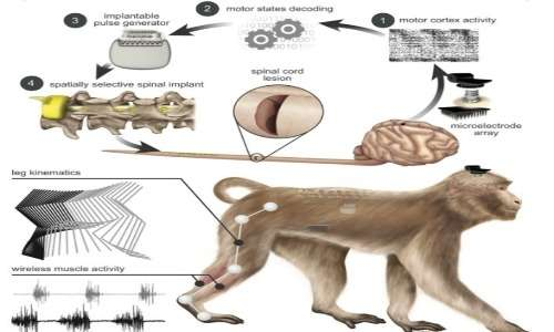 Brain spine stimulation è una nuova tecnologia che prova a superare gli ostacoli della lesione del midollo spinale.