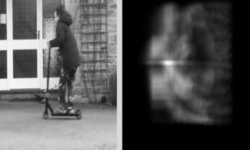 protesi retinica permette la visione di immagini sfuocate.