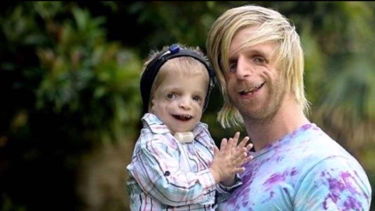 Il personaggio più noto avente la sindrome di Treacher Collins è Jono Lancaster, raffigurato nell'immagine. Notiamo inoltre che anche la figlia è stata colpita di conseguenza dalla stessa patologia