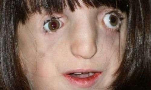 Nella sindrome di Treacher Collins troviamo spesso delle malformazioni simile a quelle riportate dalla bambina nell'immagine.