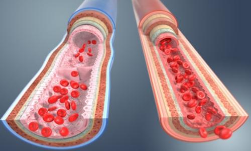 L'ipertensione arteriosa risente del diametro dei vasi sanguigni.