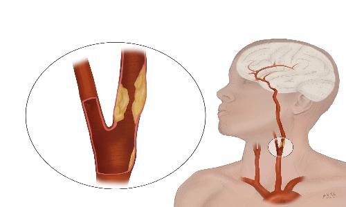 l'ipertensione arteriosa può essere aggravata dall'aterosclerosi